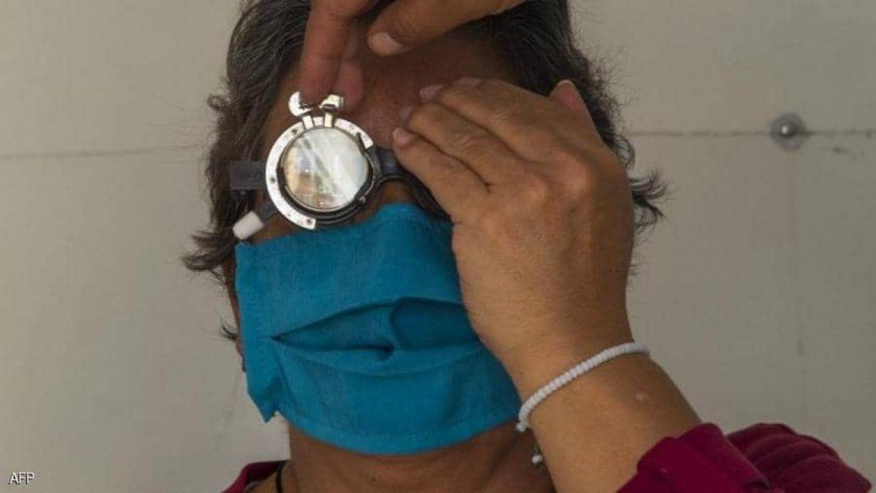 أعراض جانبية مرتبطة بالعينين لدى مصابي كورونا.. أرشيفية